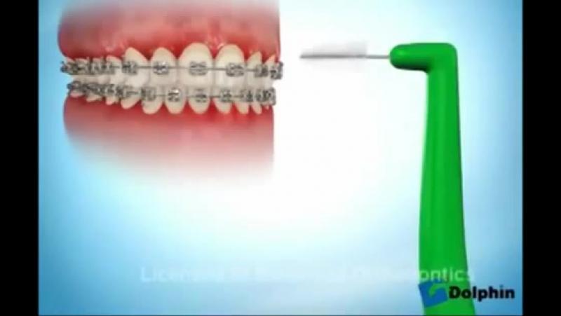 Как Правильно Чистить Зубы С Брекетами flv 1