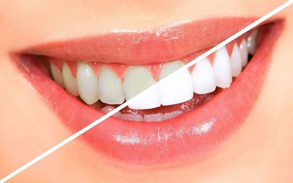 Результат отбеливания зубов углем