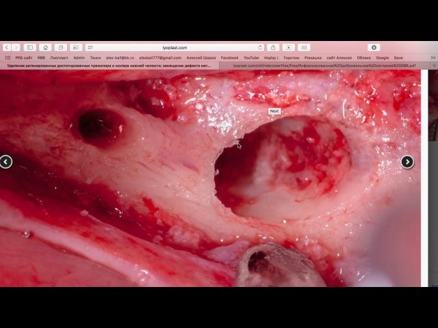 Вэбинар Биоимплантаты Лиопласт. 7 февраля 2017 часть 2