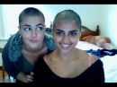 Before and after going bald - Stefania Mays Atti