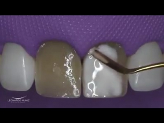Pigmentation of Discoloured Teeth. ( Opacifier )