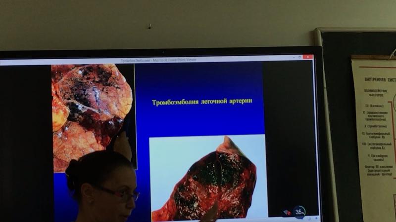 Седловидный тромб. Пульмокоронарный рефлекс. Геморрагический инфаркт легкого. Микробная эмболия почки.