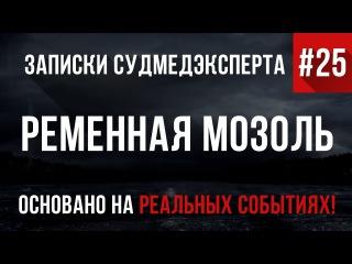 Записки Судмедэксперта 25 Ременная Мозоль (Страшные Истории на реальных событиях)