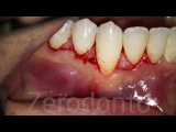 Coronally advanced flap without vertical releasing incisions Dr. Fabio Cozzolino Zerodonto