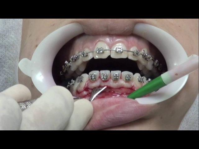 Cirurgia Gengival - Gengivectomia em Bisel Externo para correção de Hiperplasia Gengival