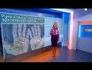 Шокирующие фото: во что превратились руки гребца в Северном Ледовитом океане