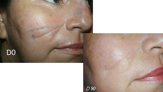 Результат трехмесячного применения крема Содермикс
