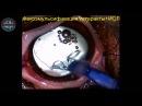 Удаление катаракты у собаки породы джек рассел терьер