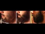 Миноксидил борода Minoxidil