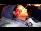 Mini Face Lift Surgery -- Short Scars -- No Anesthesia -- Dr Phillip Chang M.D. www.gotobeauty.com