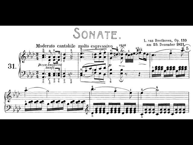 Beethoven: Sonata No.31 in A-flat Major, Op.110 (Lortie, Siirala, Kovacevich)
