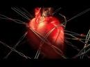 Анализы Крови ЛИПИДОГРАММА холестерин триглицериды и гомоцистеин