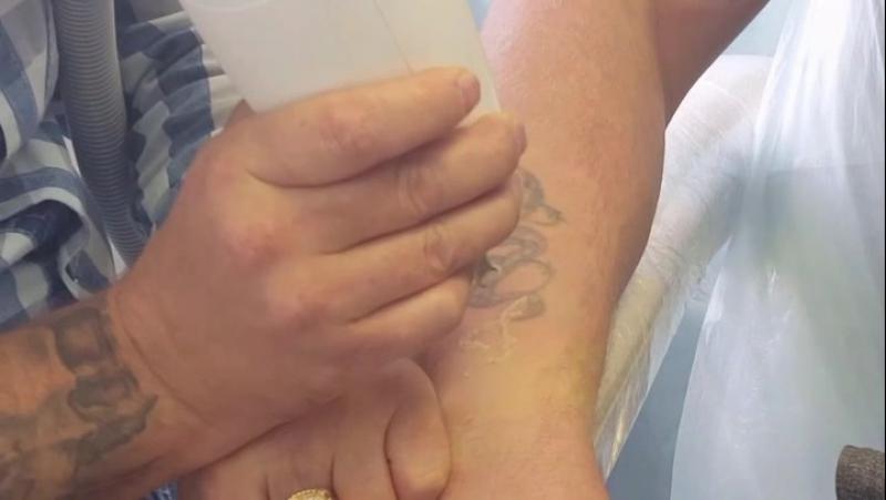 Лазерное удаление татуажа ульяновск
