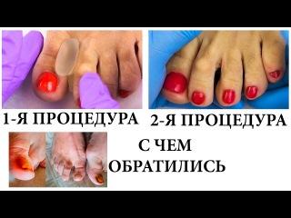 ФИЛЬМ # 1 НОЖКИ. Превращение ножек пенсионерки в ножки пионерки)
