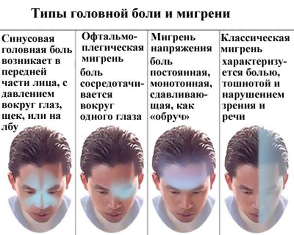 Типы головной боли и мигрени. Лечение