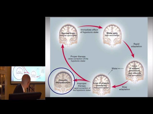 Гипер- и гипонатриемия в нейрореанимации