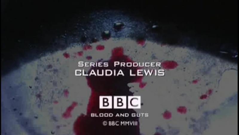 BBC Кровь и внутренности История хирургии 1. В мозг