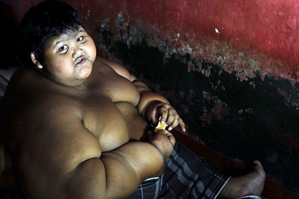самый толстый ребенок в мире