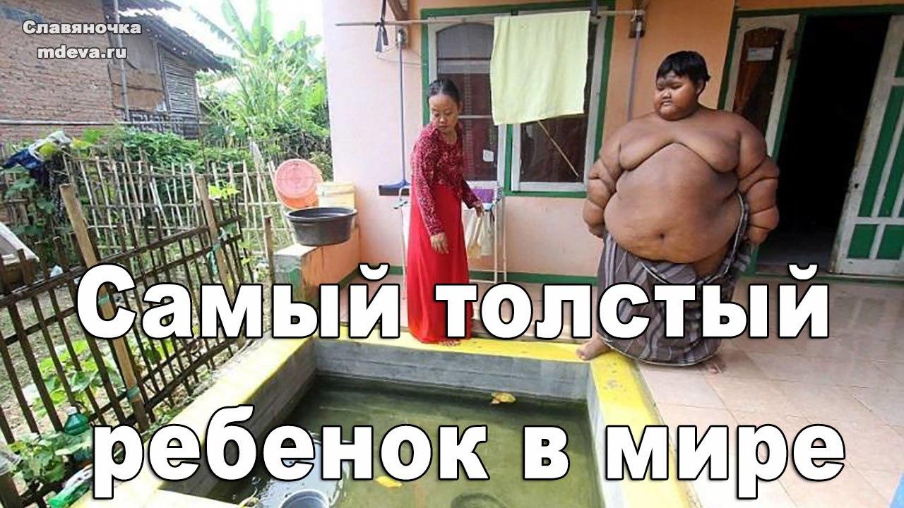 Арья Пермана — самый толстый ребенок в мире