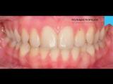 Видео 65. Лечение пациентки подросткового возраста брекетами Damon Q