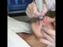 HydraFacial MD® Для Марии Мельниковой в ЦИДК