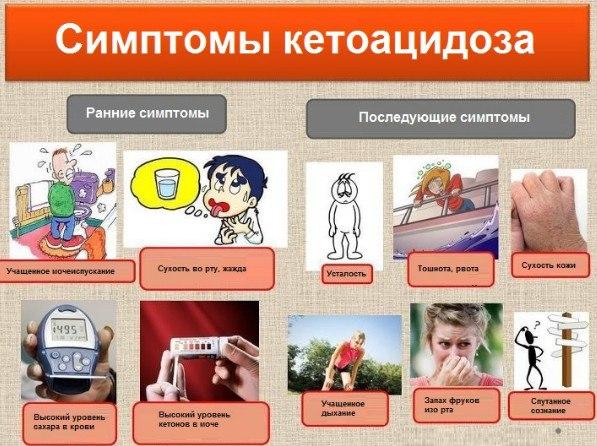Симптомы кетоацидоза
