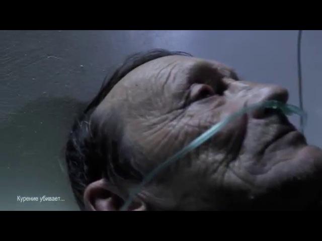 ХОБЛ ролик первый курение УБИВАЕТ