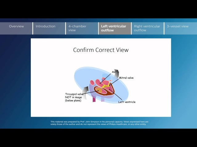 Key screening views of the fetal heart - Part 4 - Left ventricular outflow