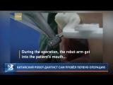 Китайский робот-дантист сам провёл первую операцию