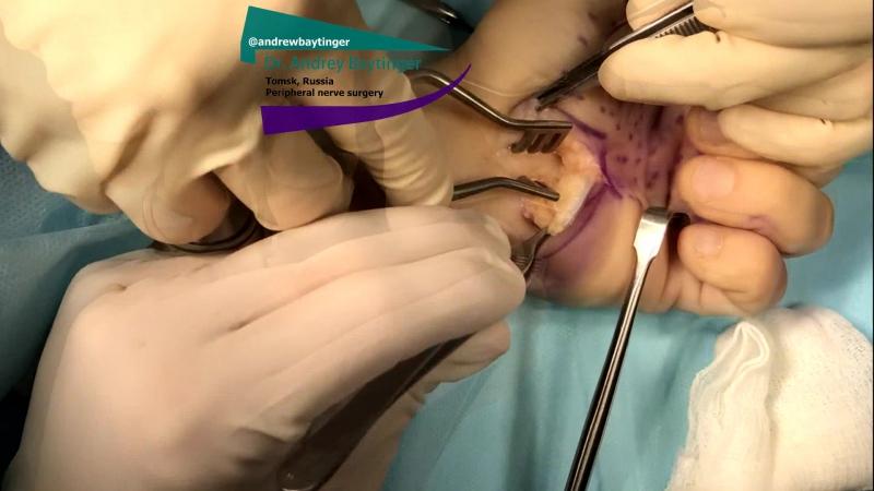Синдром карпального канала - сдавление срединного нерва на уровне запястья