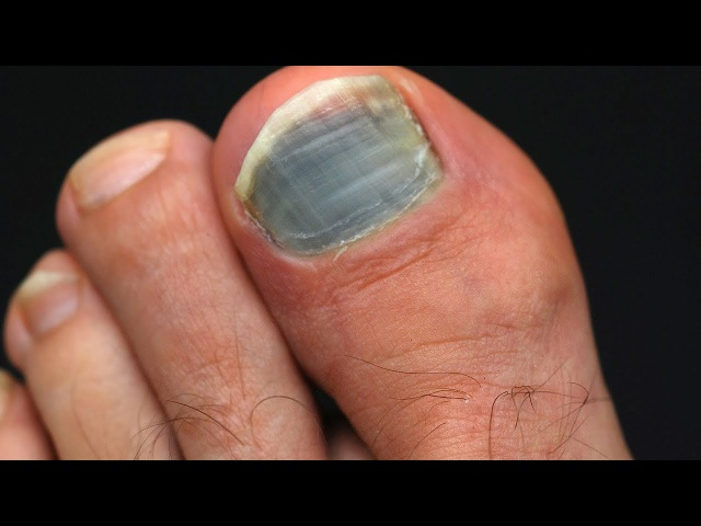 Ногти чернеют при сахарном диабете 2 типа