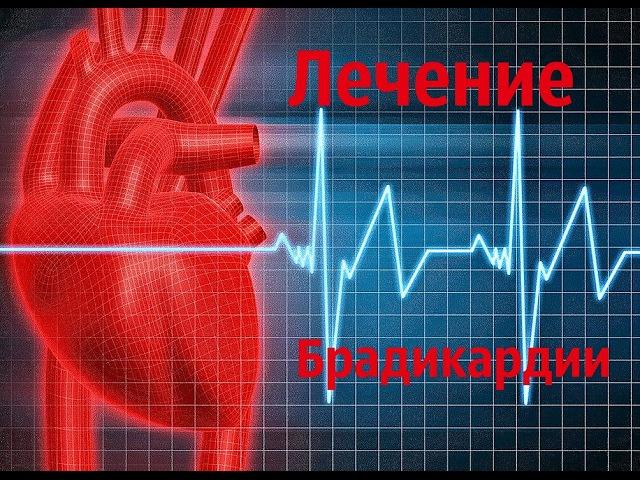 Как лечить брадикардию сердца