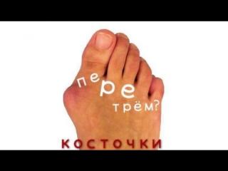 как вылечить косточки на большом пальце ноги