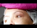 Noninvasiv Blepharoplasty with Jett Plasma Lift Medical