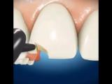 скол зуба реставрация