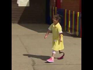 Девушка пришла в школу с протезом, реакция одноклассников