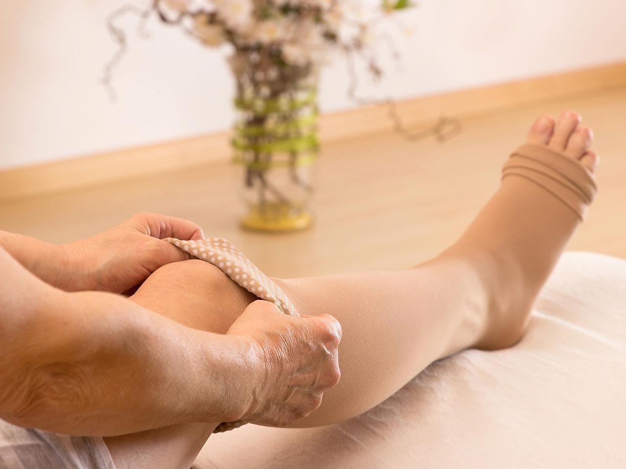 Причины возникновения варикоза на ногах