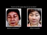 Революционные возможности в омоложении и лечении кожи! С Jeunesse Global и LUMINESCE. Люминес