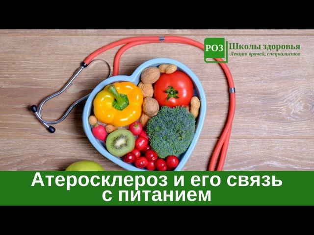 Атеросклероз и его связь с питанием современного человека. Лекция Н.Г. Байкулово » Freewka.com - Смотреть онлайн в хорощем качестве