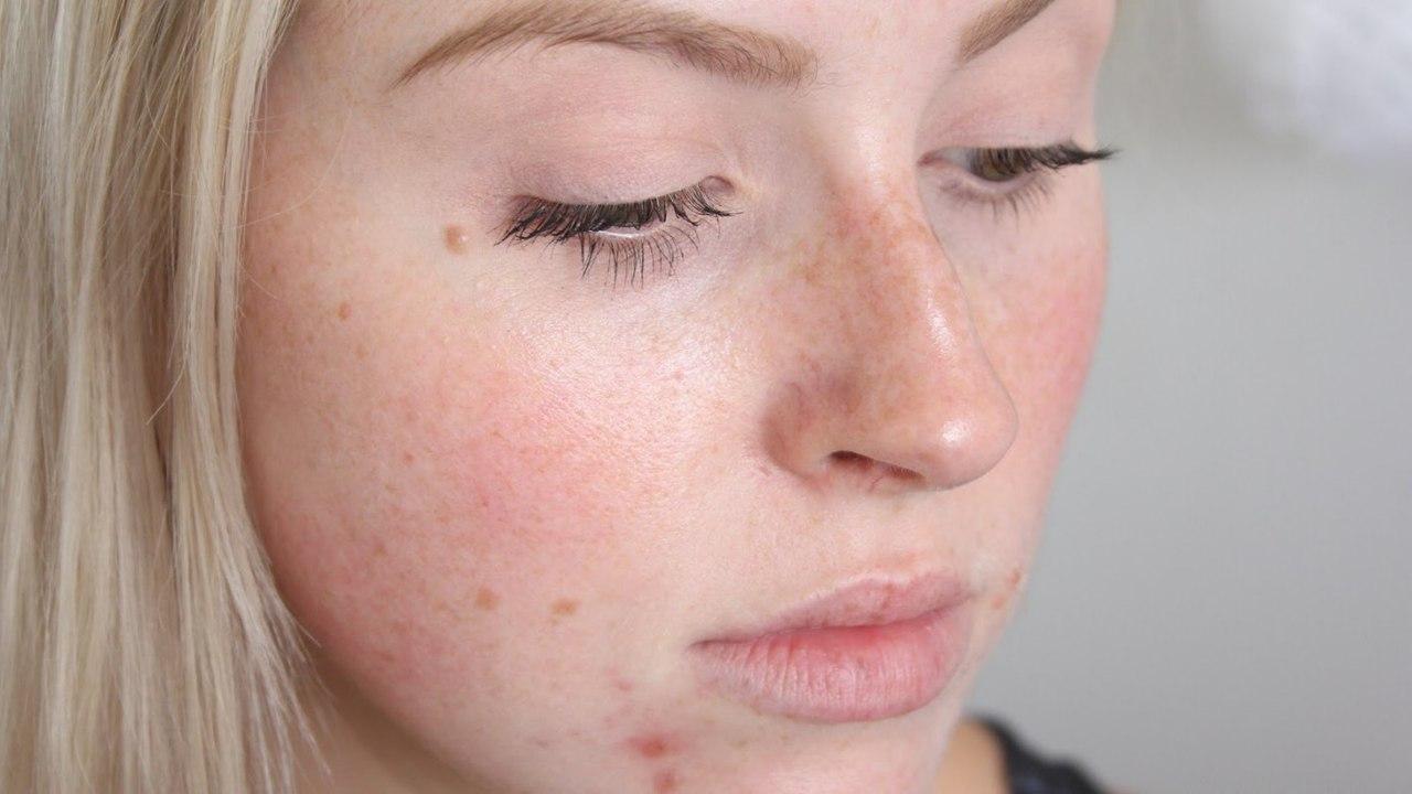 Акне и поры кожи