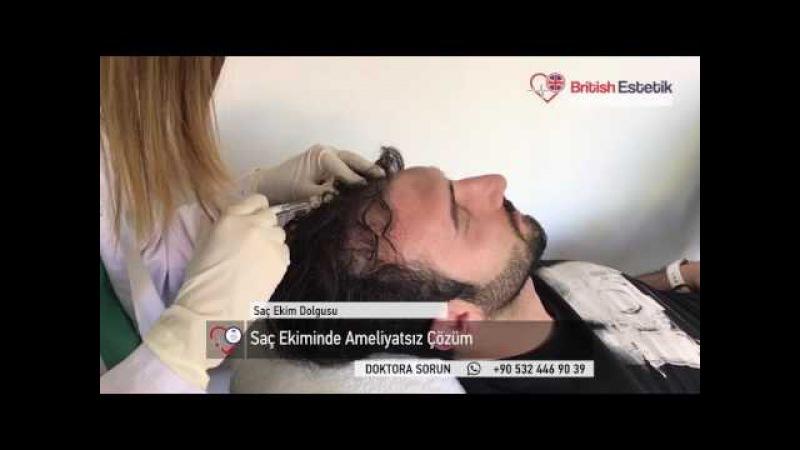 Saç Ekiminde Ameliyatsız Çözüm Saç Ekimi Dolgusu Türkiyede Sadece British Estetikte