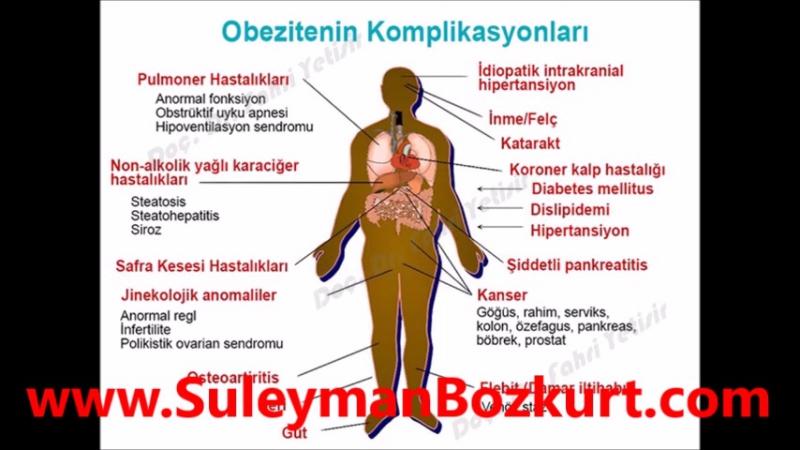 Tüp Mide Ameliyatı | SuleymanBozkurt.com