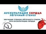 Аускультация сердца: стеноз лёгочной артерии
