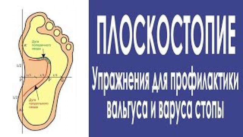 Теряем плоскостопие Вальгус и варус стопы