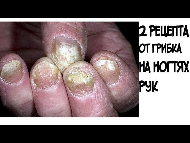 ШОКЭти два рецепта помогут избавиться от грибка на ногтях рук