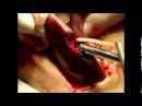 Аскариды в печени удаление хирургическим методом