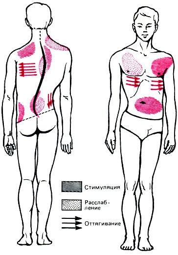 Как сколиоз влияет на мышцы