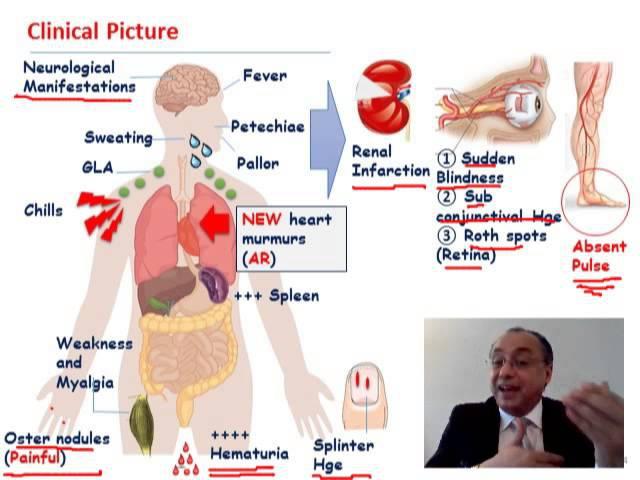 Subacute Bacterial Endocarditis (SBE)