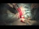 Хирургическое лечение новообразования влагалища у кошки