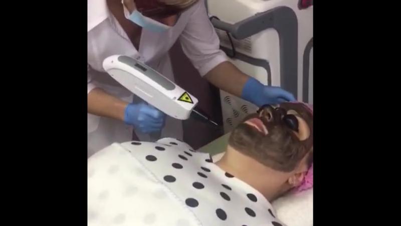 Процедура Карбоновый пилинг на аппарате ND Yag